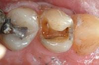 Intra-oral 1 - missing filling