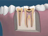 Tooth Decay | Gate Dental Clinic Galway | Dentist Galway