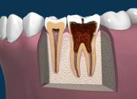 Late Stages of Tooth Decay with Dead Tissue