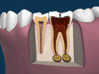 Late Stages of Tooth Decay with Diseased Bone