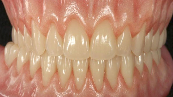 Real Life Denture By Dr Paul Moore - Gate Dental Clinic Galway