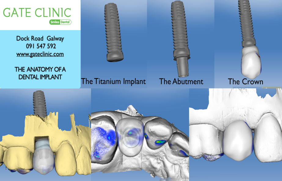 Dental Implants Procedure at Gate Dental Clinic Galway