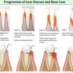Gum disease and bone loss
