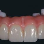 Dental implants Galway