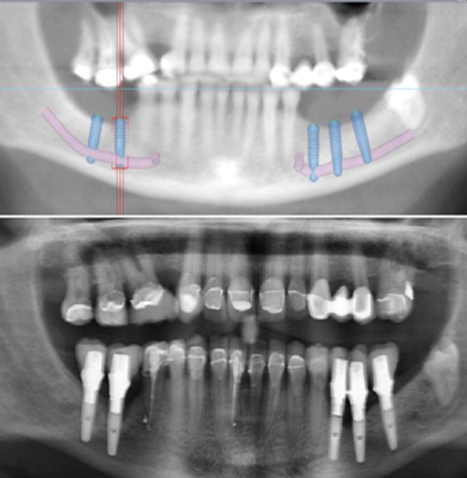 Nerve Laterilsation, Gate Clinic Galway, Smiles Dental