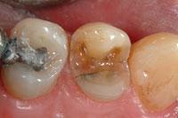 Intra-oral camera - fractured amalgam